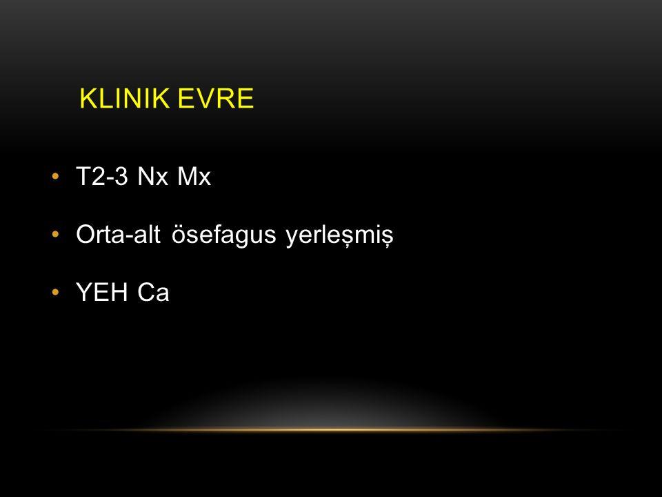 KLINIK EVRE T2-3 Nx Mx Orta-alt ösefagus yerleşmiş YEH Ca