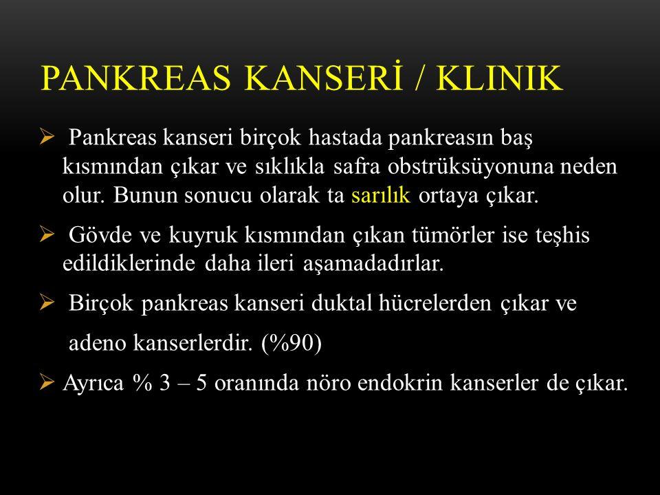 PANKREAS KANSERİ / KLINIK  Pankreas kanseri birçok hastada pankreasın baş kısmından çıkar ve sıklıkla safra obstrüksüyonuna neden olur.