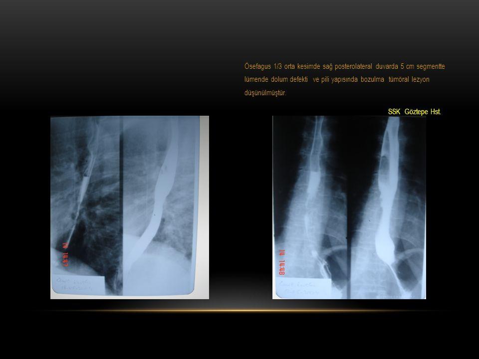 ÖZOFAGUS KANSERI OLDUKÇA HABIS BIR HASTALIK: 1953-1978 yılları arasındaki 122 makale gözden geçirilmiş: 5 yıllık sağkalım Cerrahi uygulanan 83.000 olguda% 4 Radyoterapi uygulanan 8.000 olguda% 6 Erlam R & Cunha-Melo JR: Br J Surg 67:381-390, 1980