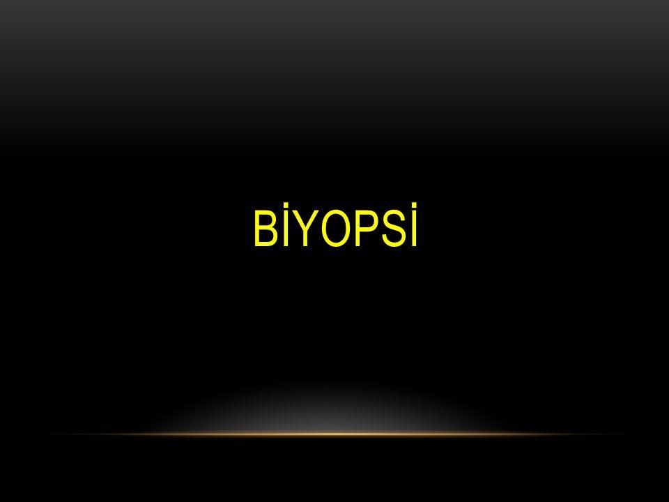 KOLOREKTAL KANSERLER / ETYOLOJI  Genetik faktörler: Familyal polipozis.
