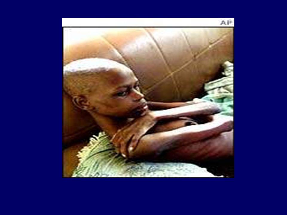 AIDS Hastalığının Belirtileri Nelerdir? Tekrarlayan ateş ve gece terlemesi Nedeni belirsiz hızlı kilo kaybı Boyun, koltuk altı ve kasık lenf bezlerini