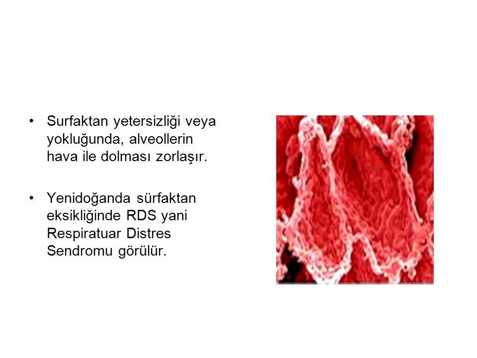 Surfaktan yetersizliği veya yokluğunda, alveollerin hava ile dolması zorlaşır. Yenidoğanda sürfaktan eksikliğinde RDS yani Respiratuar Distres Sendrom
