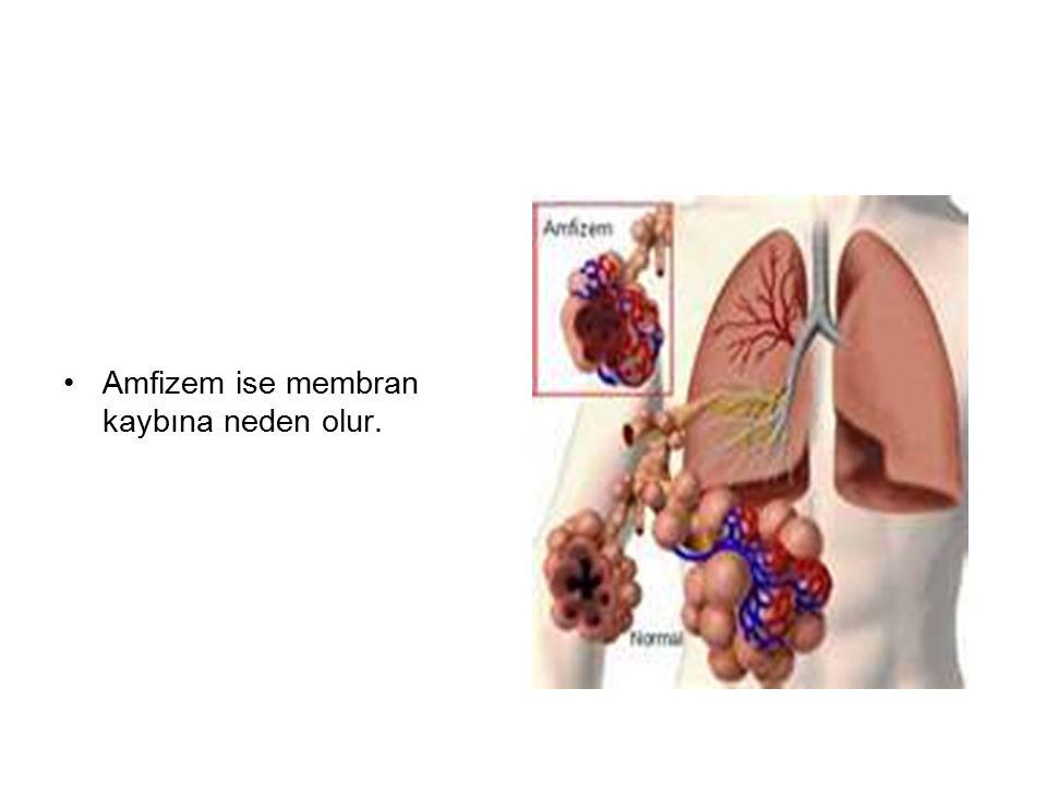 Amfizem ise membran kaybına neden olur.