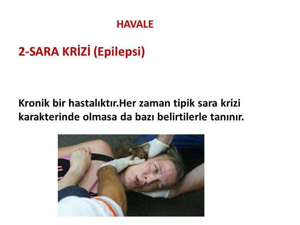 HAVALE 2-SARA KRİZİ (Epilepsi) Kronik bir hastalıktır.Her zaman tipik sara krizi karakterinde olmasa da bazı belirtilerle tanınır.