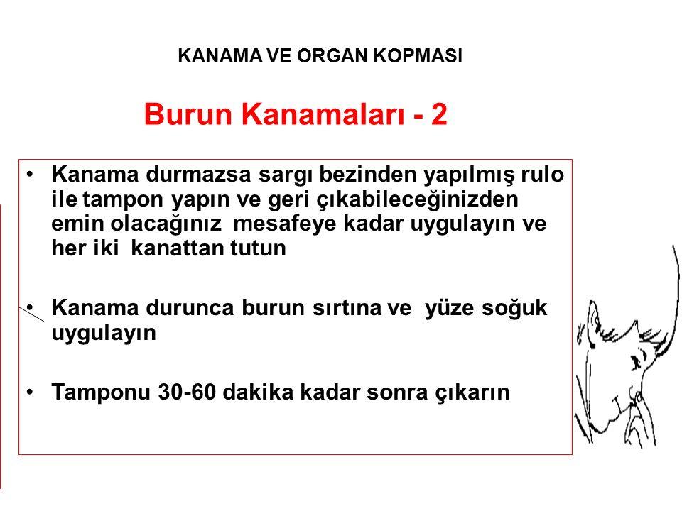 Burun Kanamaları - 2 Kanama durmazsa sargı bezinden yapılmış rulo ile tampon yapın ve geri çıkabileceğinizden emin olacağınız mesafeye kadar uygulayın