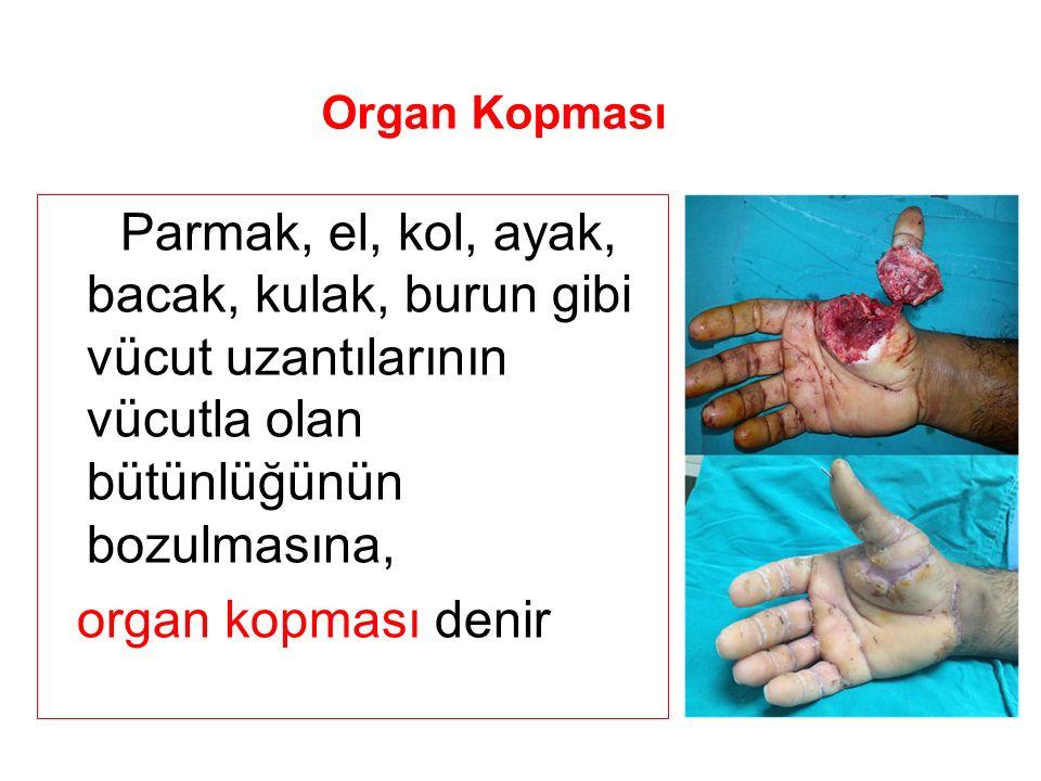 Parmak, el, kol, ayak, bacak, kulak, burun gibi vücut uzantılarının vücutla olan bütünlüğünün bozulmasına, organ kopması denir Organ Kopması