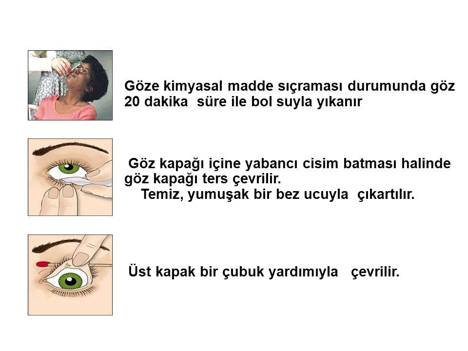 Göze kimyasal madde sıçraması durumunda göz 20 dakika süre ile bol suyla yıkanır Göz kapağı içine yabancı cisim batması halinde göz kapağı ters çevril