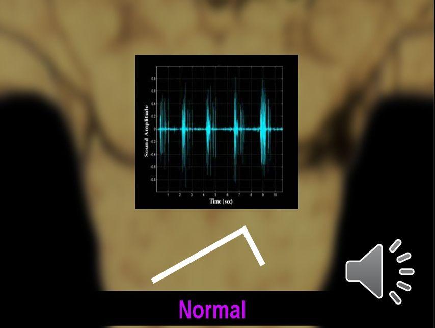 Vesiküler Solunum Sesi Yumuşak, rüzgar sesi gibi işitilir.