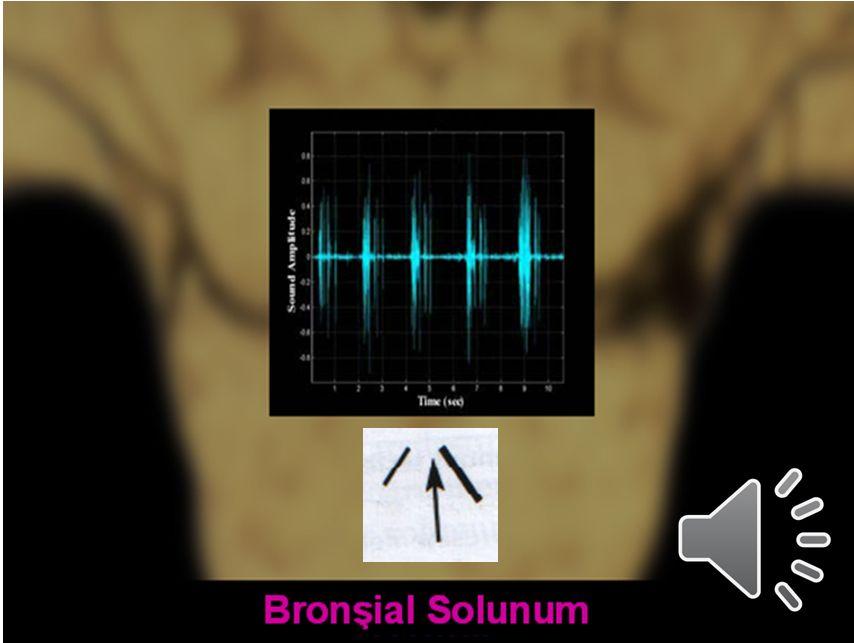 26 Trakeal Ses Bronşial Ses