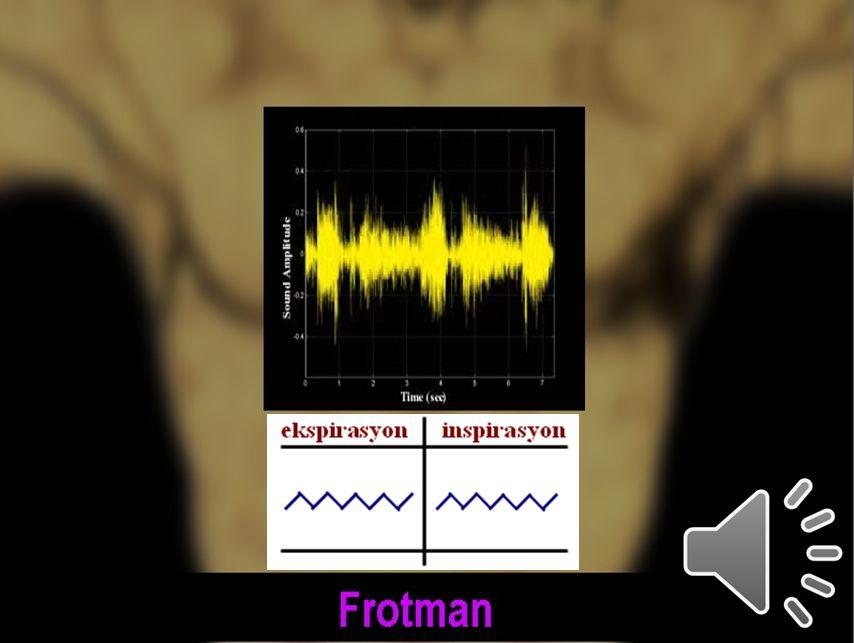 68 Plevral sürtünme sesi 1.1. Plörezide selülöz/fibrinöz bir eksudasyon (pürüzlü plevra) 2.