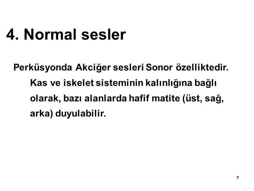 6 3. Klasifikasyon Rezonans= Sonor ses  Normal Hiperrezonans=Hipersonor ses  Amfizem, astım atağı Timpanizm  Kavite, pnömotoraks Matite (Dullness)