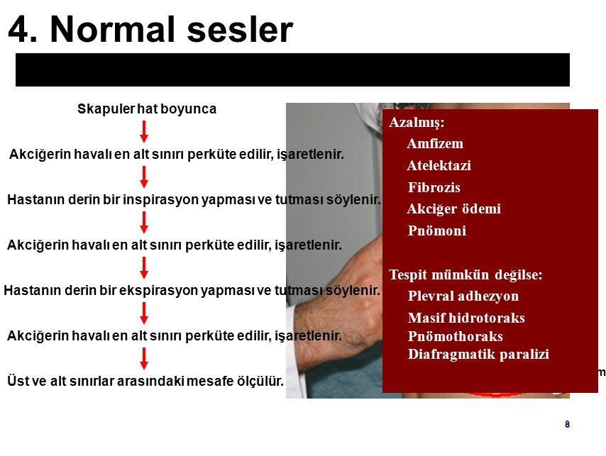 7 4.Normal sesler Perküsyonda Akciğer sesleri Sonor özelliktedir.
