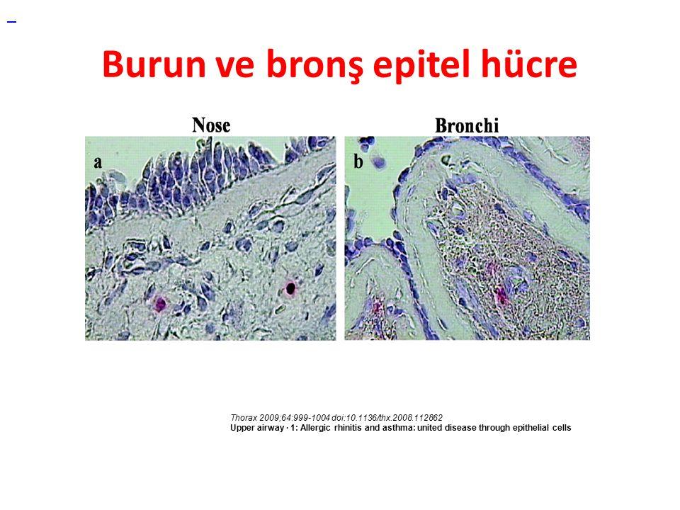 Burun ve bronş epitel hücre Thorax 2009;64:999-1004 doi:10.1136/thx.2008.112862 Upper airway · 1: Allergic rhinitis and asthma: united disease through