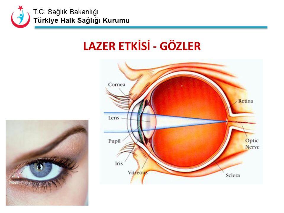 T.C. Sağlık Bakanlığı Türkiye Halk Sağlığı Kurumu LAZER ETKİSİ - GÖZLER