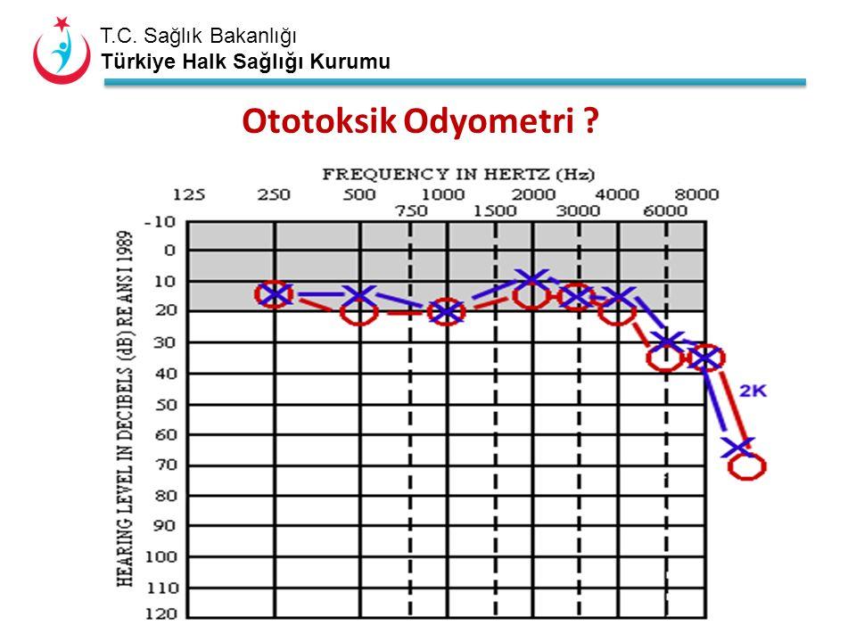 T.C. Sağlık Bakanlığı Türkiye Halk Sağlığı Kurumu Ototoksik Odyometri ?