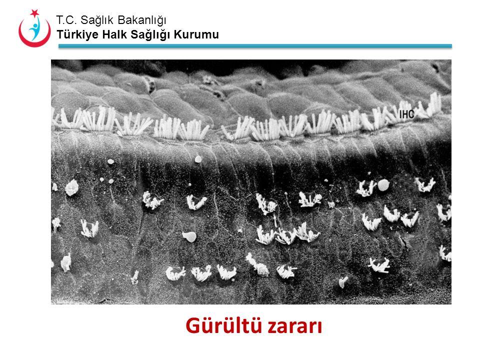 T.C. Sağlık Bakanlığı Türkiye Halk Sağlığı Kurumu Gürültü zararı