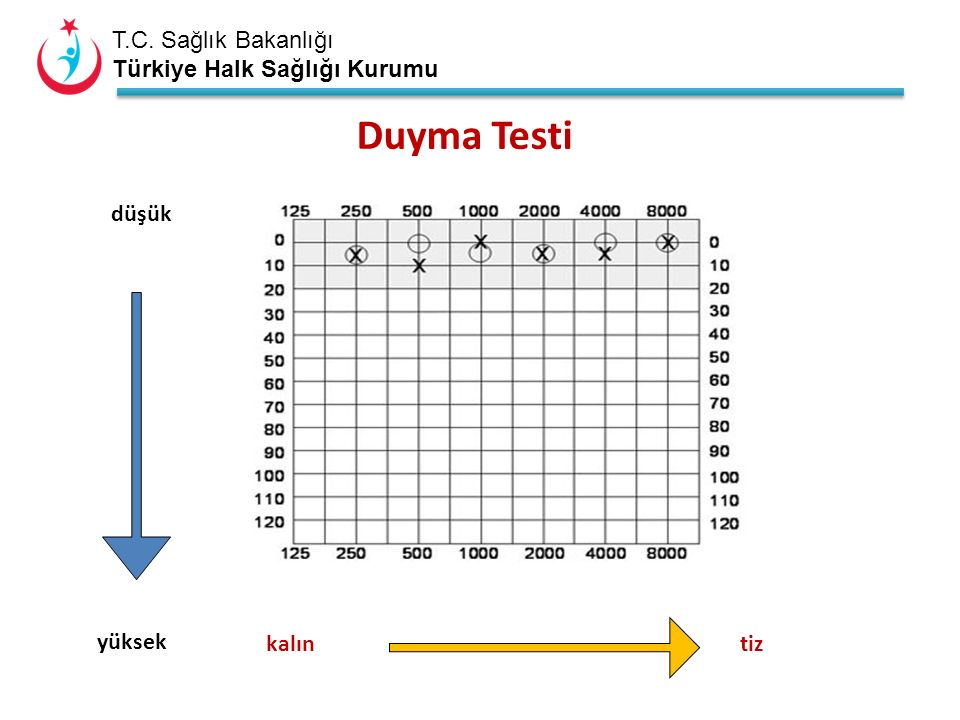 T.C. Sağlık Bakanlığı Türkiye Halk Sağlığı Kurumu Duyma Testi düşük yüksek kalıntiz