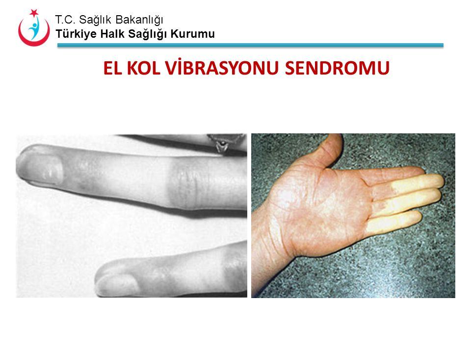 T.C. Sağlık Bakanlığı Türkiye Halk Sağlığı Kurumu EL KOL VİBRASYONU SENDROMU