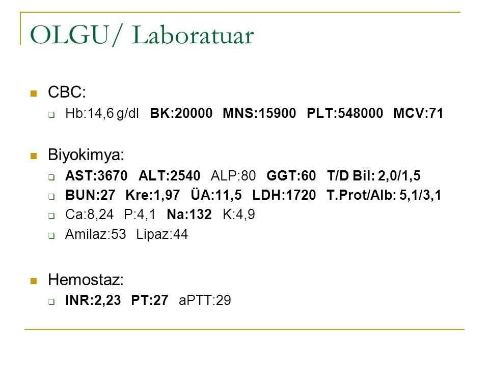 OLGU/ Laboratuar CBC:  Hb:14,6 g/dl BK:20000 MNS:15900 PLT:548000 MCV:71 Biyokimya:  AST:3670 ALT:2540 ALP:80 GGT:60 T/D Bil: 2,0/1,5  BUN:27 Kre:1