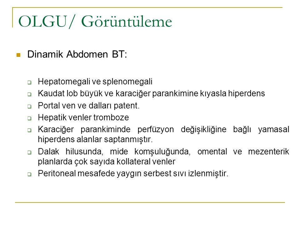 OLGU/ Görüntüleme Dinamik Abdomen BT:  Hepatomegali ve splenomegali  Kaudat lob büyük ve karaciğer parankimine kıyasla hiperdens  Portal ven ve dal