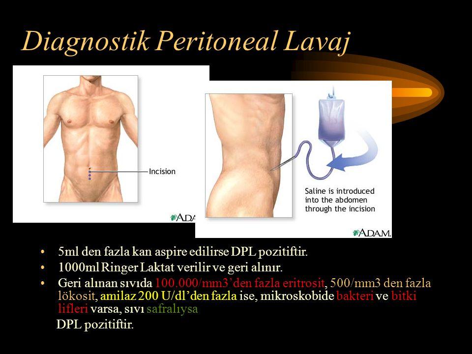 Diagnostik Peritoneal Lavaj 5ml den fazla kan aspire edilirse DPL pozitiftir. 1000ml Ringer Laktat verilir ve geri alınır. Geri alınan sıvıda 100.000/
