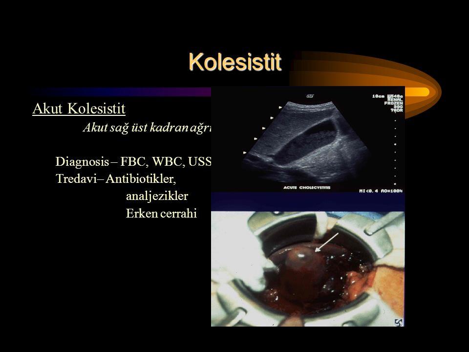 Kolesistit Akut Kolesistit Akut sağ üst kadran ağrısı Diagnosis – FBC, WBC, USS Tredavi– Antibiotikler, analjezikler Erken cerrahi