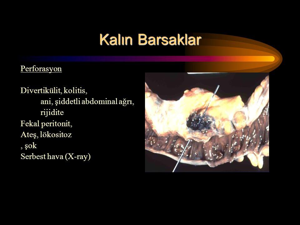 Kalın Barsaklar Perforasyon Divertikülit, kolitis, ani, şiddetli abdominal ağrı, rijidite Fekal peritonit, Ateş, lökositoz, şok Serbest hava (X-ray)