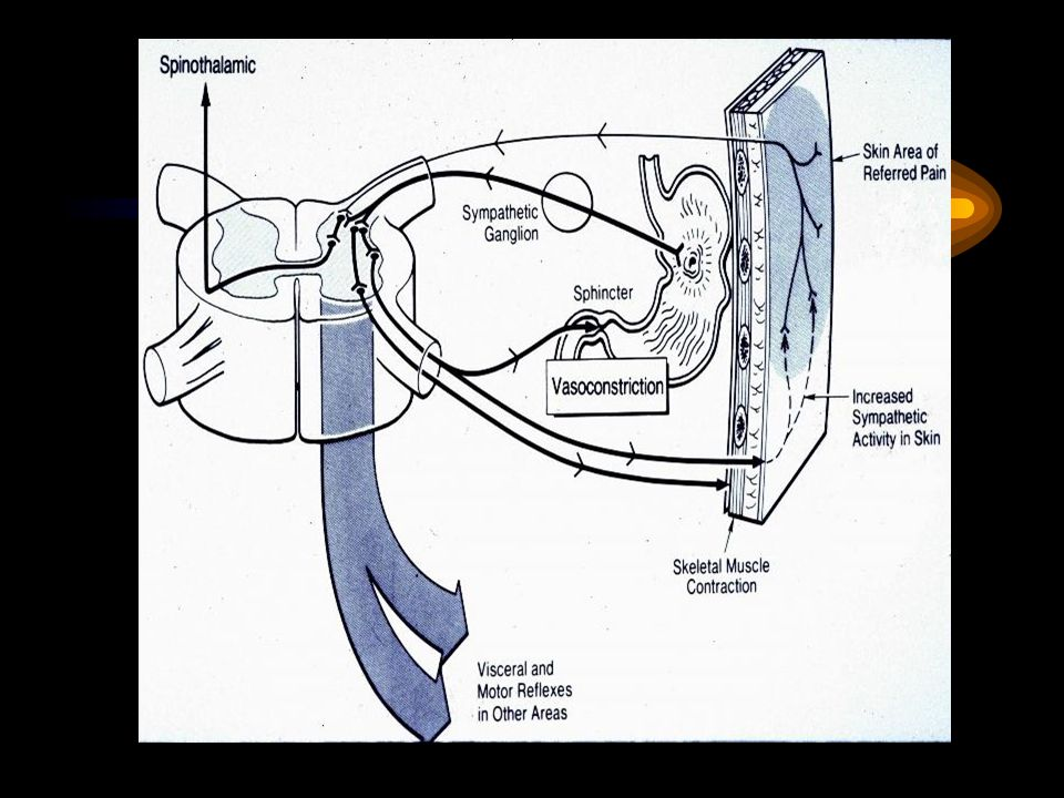 Karın Muayenesinde Patolojik Bulgular İnspeksiyon: Distansiyon, asimetri, insizyon skarları?Renk değişikliği(sarılık), şişlik( umblikal fıtık gibi), Grey Turner belirtisi (akut hemorajik pankreatit) Oskültasyon: Barsak sesleri?Hipoaktif- hiperaktif-normoaktif-mezar sessizliği, Metalik ses=tınlama, üfürüm, klopotaj