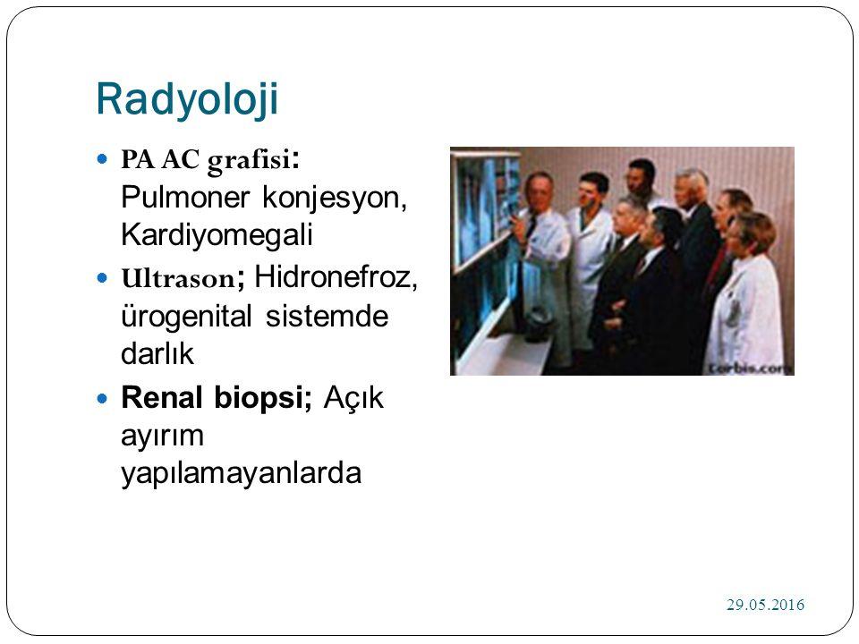 Radyoloji PA AC grafisi : Pulmoner konjesyon, Kardiyomegali Ultrason ; Hidronefroz, ürogenital sistemde darlık Renal biopsi; Açık ayırım yapılamayanlarda 29.05.2016