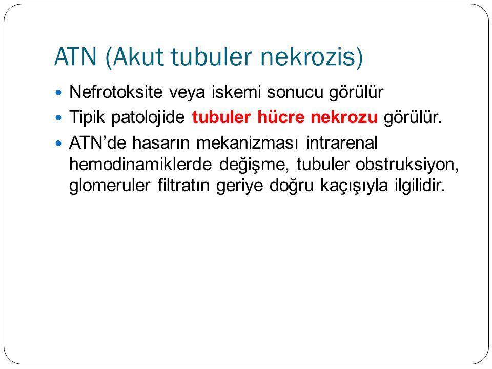 ATN (Akut tubuler nekrozis) Nefrotoksite veya iskemi sonucu görülür Tipik patolojide tubuler hücre nekrozu görülür.