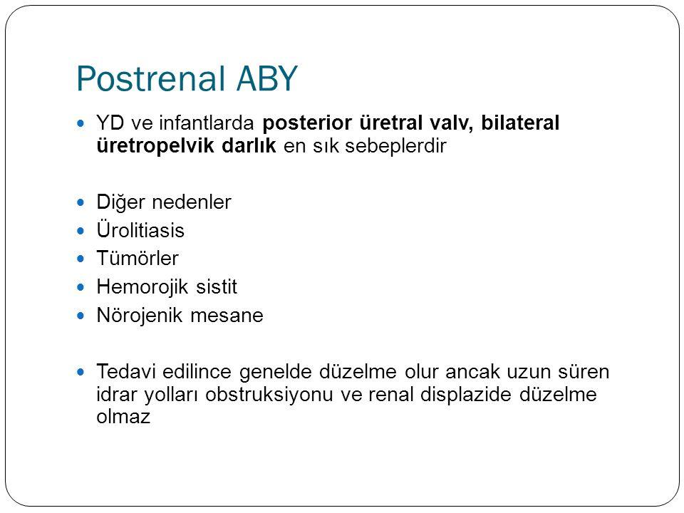 Postrenal ABY YD ve infantlarda posterior üretral valv, bilateral üretropelvik darlık en sık sebeplerdir Diğer nedenler Ürolitiasis Tümörler Hemorojik sistit Nörojenik mesane Tedavi edilince genelde düzelme olur ancak uzun süren idrar yolları obstruksiyonu ve renal displazide düzelme olmaz