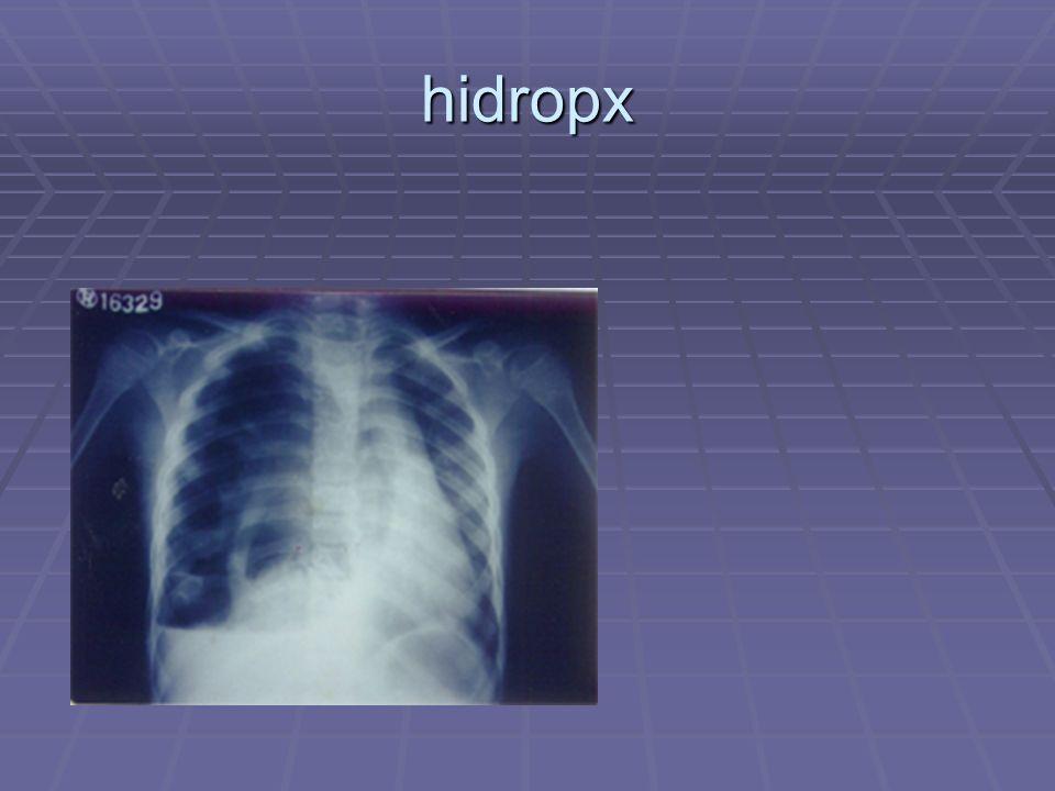 hidropx