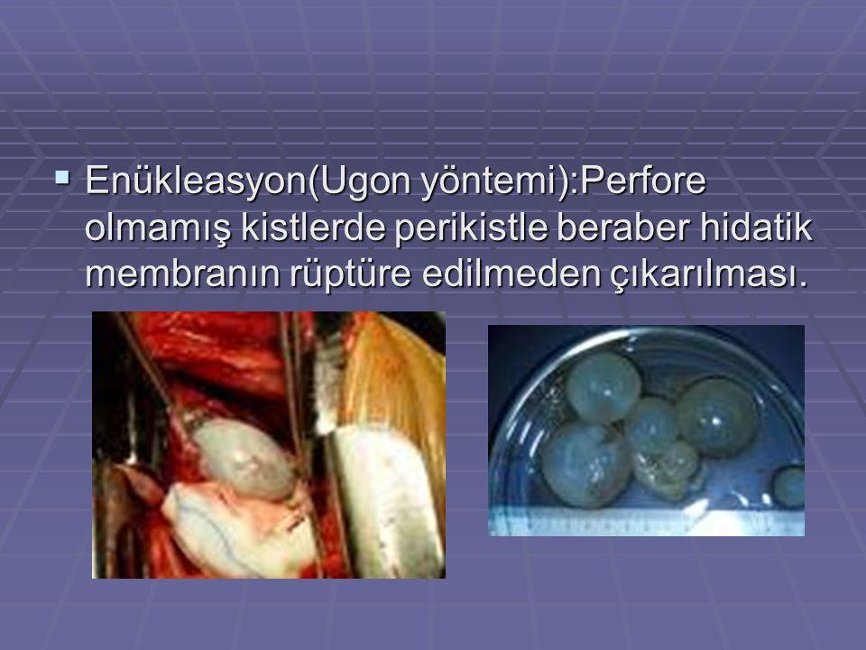  Enükleasyon(Ugon yöntemi):Perfore olmamış kistlerde perikistle beraber hidatik membranın rüptüre edilmeden çıkarılması.