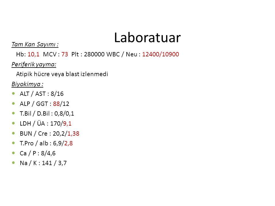 Laboratuar Tam Kan Sayımı : Hb: 10,1 MCV : 73 Plt : 280000 WBC / Neu : 12400/10900 Periferik yayma: Atipik hücre veya blast izlenmedi Biyokimya : ALT / AST : 8/16 ALP / GGT : 88/12 T.Bil / D.Bil : 0,8/0,1 LDH / ÜA : 170/9,1 BUN / Cre : 20,2/1,38 T.Pro / alb : 6,9/2,8 Ca / P : 8/4,6 Na / K : 141 / 3,7
