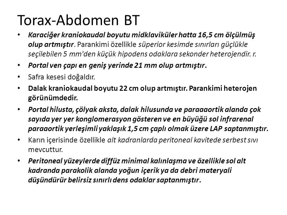 Torax-Abdomen BT Karaciğer kraniokaudal boyutu midklaviküler hatta 16,5 cm ölçülmüş olup artmıştır. Parankimi özellikle süperior kesimde sınırları güç