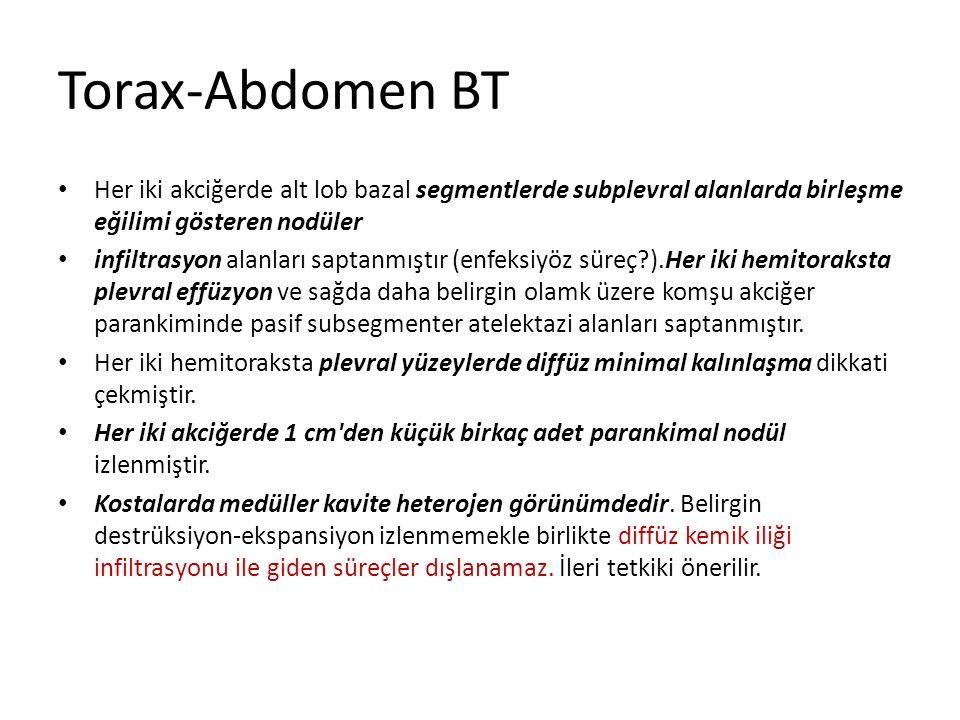 Torax-Abdomen BT Her iki akciğerde alt lob bazal segmentlerde subplevral alanlarda birleşme eğilimi gösteren nodüler infiltrasyon alanları saptanmıştı