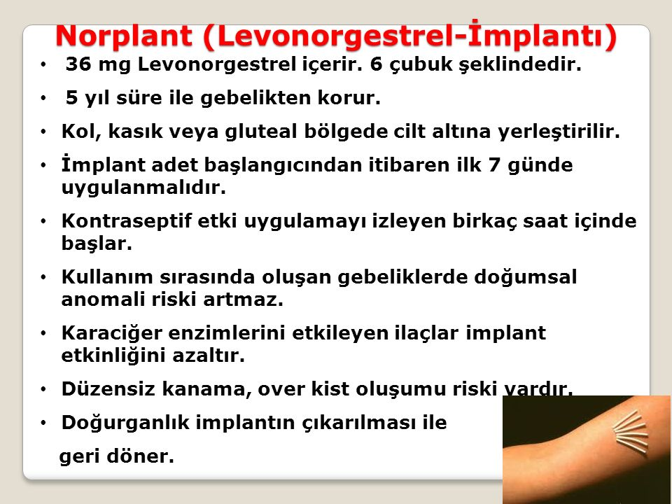 Norplant (Levonorgestrel-İmplantı) 36 mg Levonorgestrel içerir. 6 çubuk şeklindedir. 5 yıl süre ile gebelikten korur. Kol, kasık veya gluteal bölgede
