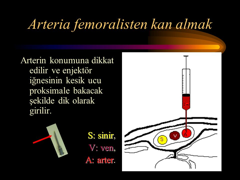 Arteria femoralisten kan almak Arterin konumuna dikkat edilir ve enjektör iğnesinin kesik ucu proksimale bakacak şekilde dik olarak girilir.