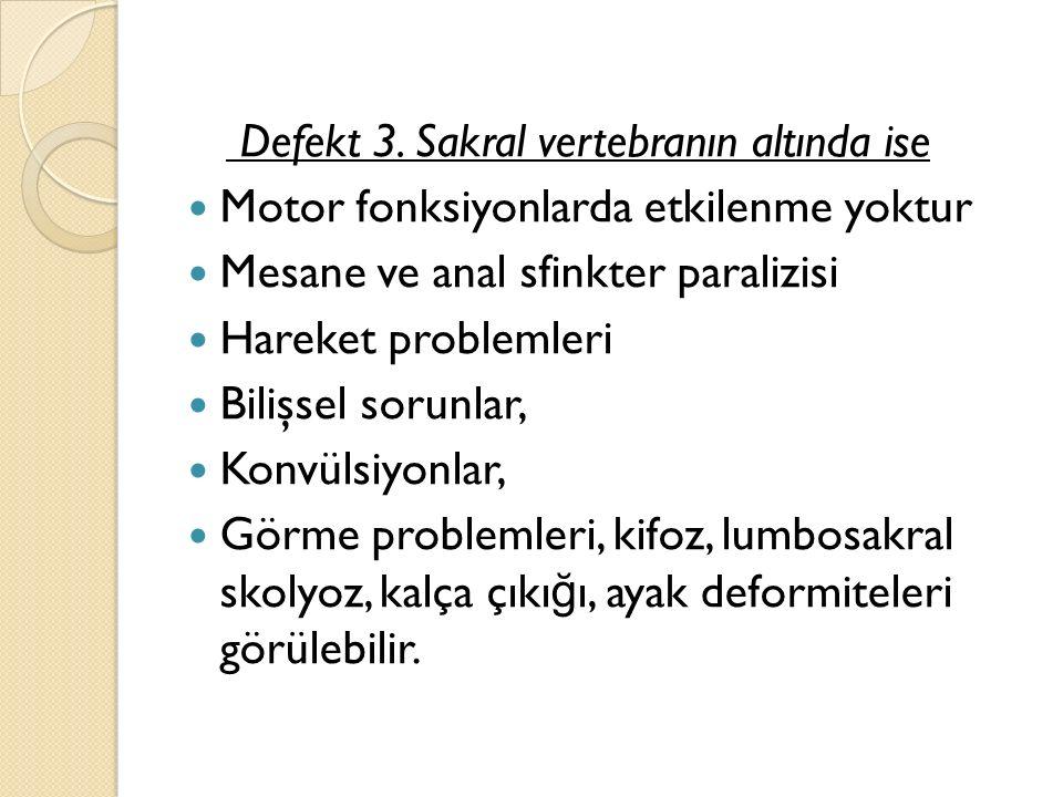 Defekt 3.