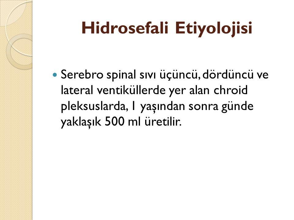 Hidrosefali Etiyolojisi Serebro spinal sıvı üçüncü, dördüncü ve lateral ventiküllerde yer alan chroid pleksuslarda, 1 yaşından sonra günde yaklaşık 500 ml üretilir.