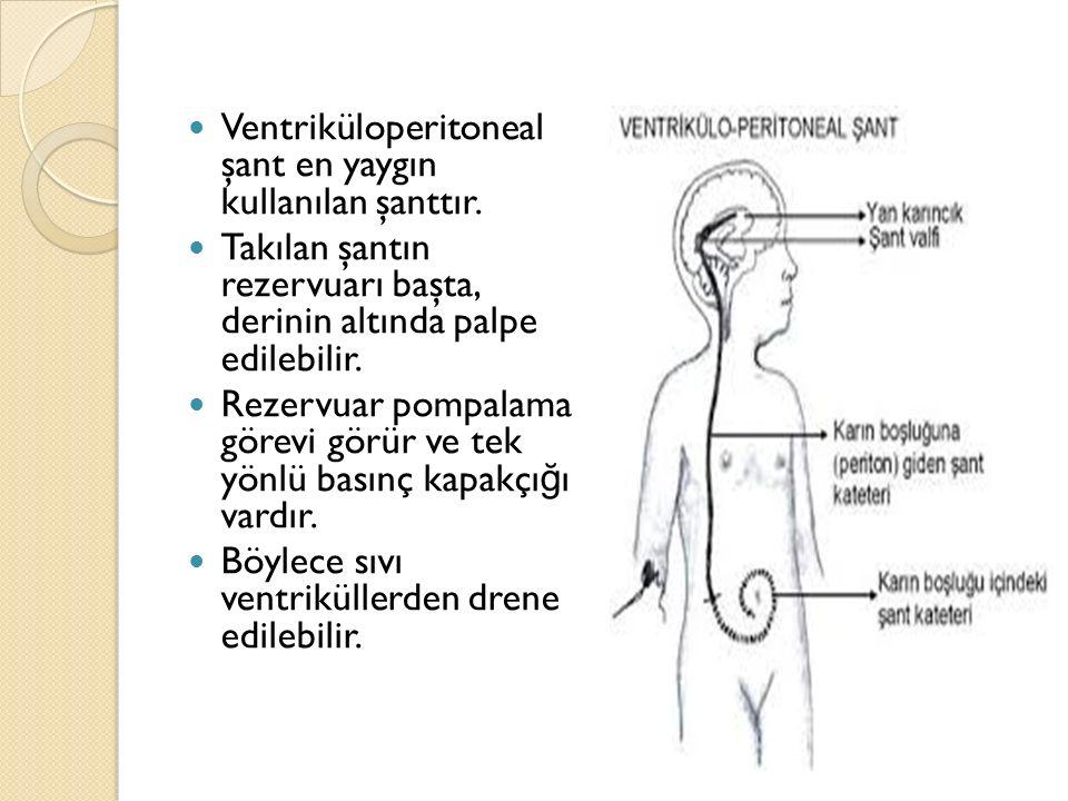 Ventriküloperitoneal şant en yaygın kullanılan şanttır.