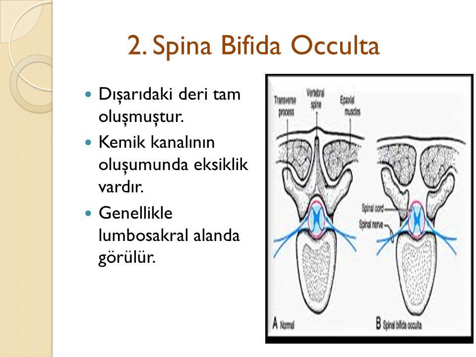 2.Spina Bifida Occulta Dışarıdaki deri tam oluşmuştur.