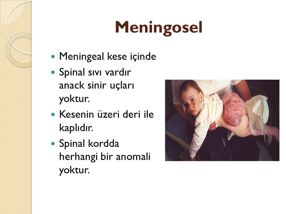 Myelomeningosel Meningeal kesede spinal sıvı, spinal kordun bir bölümü ve bölgedeki sinirler yer alır.
