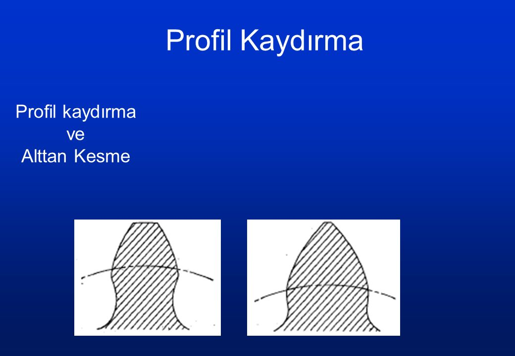 Profil kaydırma ve Alttan Kesme Profil Kaydırma