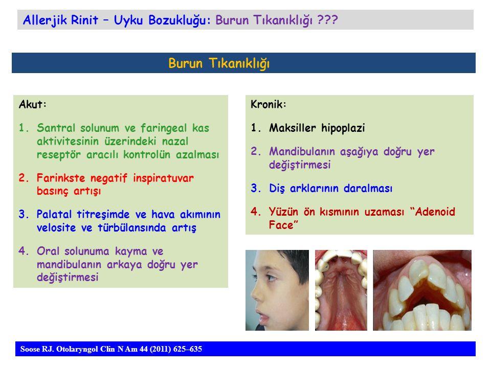 Burun Tıkanıklığı Akut: 1.Santral solunum ve faringeal kas aktivitesinin üzerindeki nazal reseptör aracılı kontrolün azalması 2.Farinkste negatif inspiratuvar basınç artışı 3.Palatal titreşimde ve hava akımının velosite ve türbülansında artış 4.Oral solunuma kayma ve mandibulanın arkaya doğru yer değiştirmesi Allerjik Rinit – Uyku Bozukluğu: Burun Tıkanıklığı .