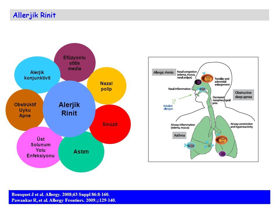 Allerjik Rinit Bousquet J et al. Allergy. 2008;63 Suppl 86:8-160. Pawankar R, et al. Allergy Frontiers. 2009.;:129-140. Efüzyonlu otitis media Nazal p