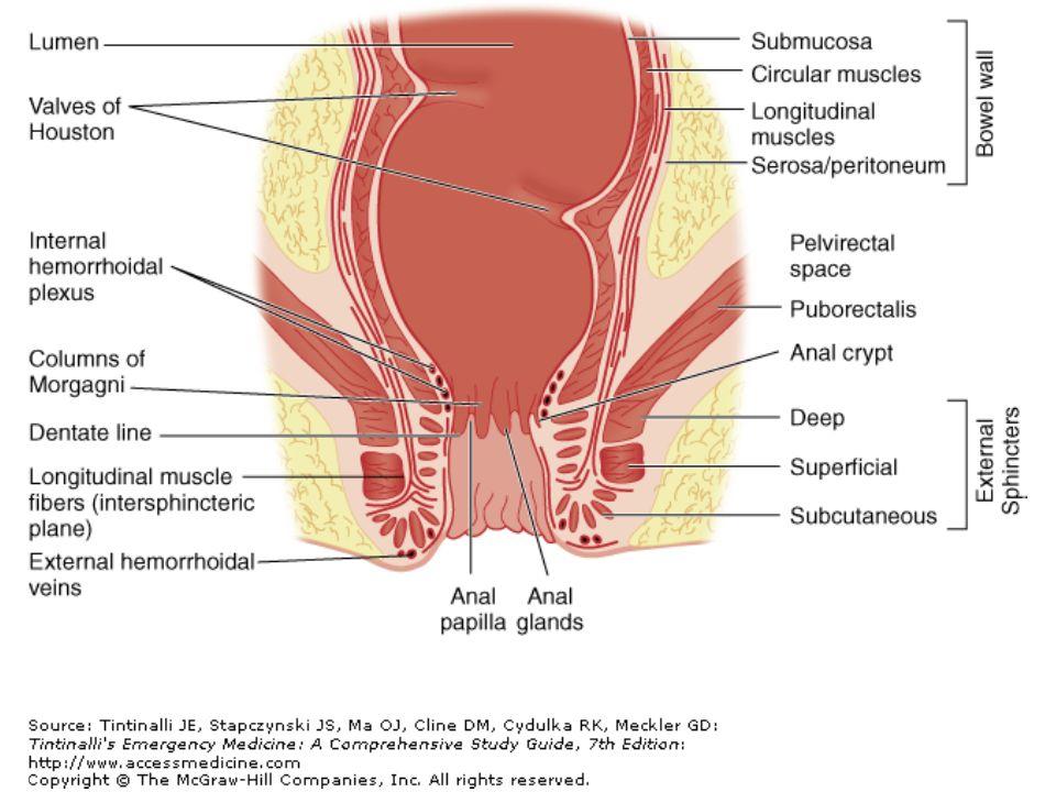REKTAL YABANCI CİSİM Kramp tarzda ağrı, kanama, rahatsızlık Çoğu dijital muayenede palpable Nadirde olsa perforasyona yol açabilir Tanıda x-ray; cisimi görme, perforasyon –Radyolüsent cisim için CT Çoğu acil serviste çıkarılabilir –İşlem sonrası rektoskopi&x-ray Çıkarılamazsa kolonoskopi&cerrahi
