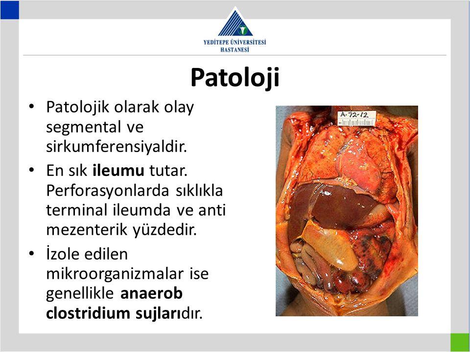 Patoloji Patolojik olarak olay segmental ve sirkumferensiyaldir. En sık ileumu tutar. Perforasyonlarda sıklıkla terminal ileumda ve anti mezenterik yü