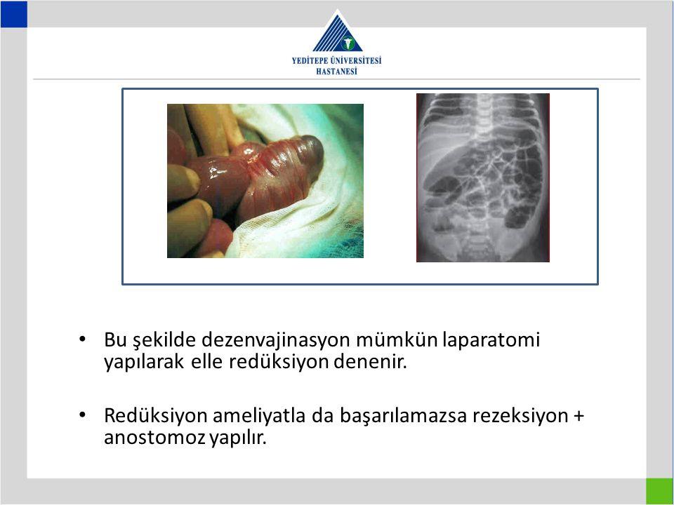 Bu şekilde dezenvajinasyon mümkün laparatomi yapılarak elle redüksiyon denenir. Redüksiyon ameliyatla da başarılamazsa rezeksiyon + anostomoz yapılır.