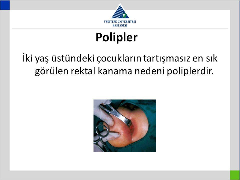 Polipler İki yaş üstündeki çocukların tartışmasız en sık görülen rektal kanama nedeni poliplerdir.